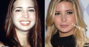 عکسهای ایوانکا دختر ترامپ قبل و بعد از عمل زیبایی