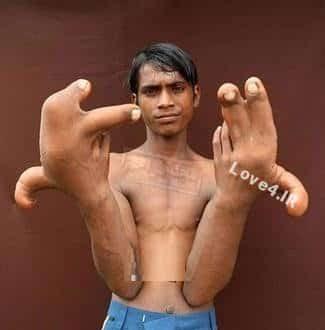 رشد عجیب انگشتان دست پسر هندی +عکس