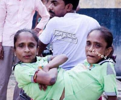ازدواج دو خواهر بهم چسبیده با معلم خود +عکس