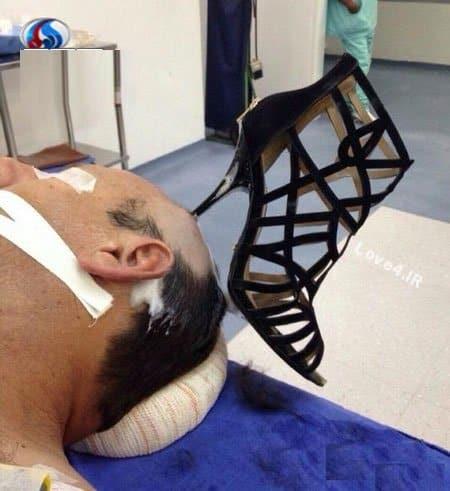 فیلمزن عربستانی که پاشنه کفش را درون سر همسر فرو کرد
